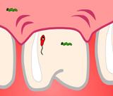 Зубник